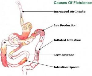 flatulence-picture